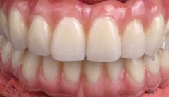 Zahnimplantate – Von der Planung zum ästhetischen Gesamterfolg