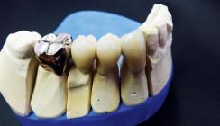 """""""Junge Zahnärzte begeistern sich für traditionelle Werkstoffe"""""""