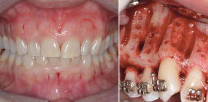 Beschleunigte orthodontische Zahnbewegung: Was funktioniert?