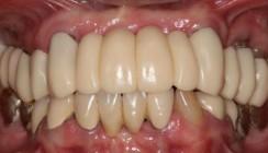 Zahnfarbene Kunststoffe als Gerüstmaterialien bei Zahnersatz
