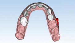 Effektive Zahnstellungskorrektur im Frontzahngebiet