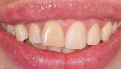 Dentogene Zysten in der Oberkieferfront