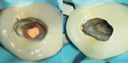 Y-Kanalaufteilung im apikalen Drittel bei einem unteren Prämolaren