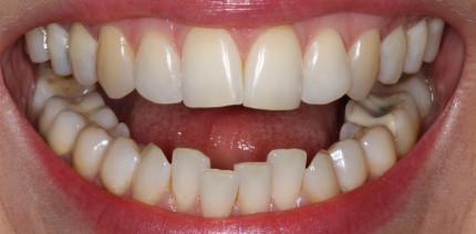 Anteriore ästhetische Zahnkorrektur für Erwachsene
