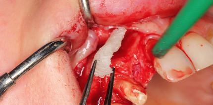 Allogener Knochenblock für die Augmentation im Frontzahngebiet
