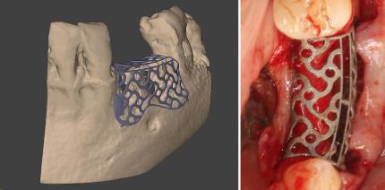 Augmentation des Hart- und Weichgewebes mit 3D-Planung