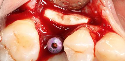 Korrektive Konturaugmentation eines residualen Implantatdehiszenzdefekts