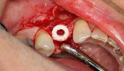 Kieferkammaugmentation mithilfe eines allogenen Knochenrings