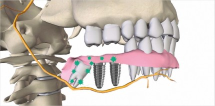 Biofeedback-Anästhesie – Die Anästhesie der Zukunft?
