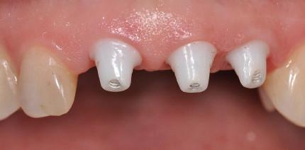 Optimale Ästhetik mit Keramikimplantaten