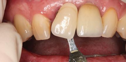 Gestern & heute: Implantatprothetik im Frontzahngebiet