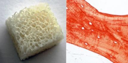 Update: Allogene Knochenersatzmaterialien