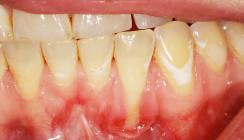 Parodontitis: Vor der Therapie steht die Diagnose