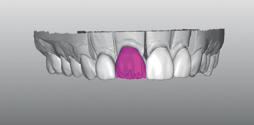 Diastema mediale: Digital konstruiert, manuell gefinisht