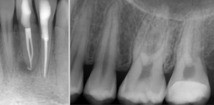 Die digitale Volumentomografie in der Endodontie