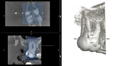Die dreidimensionale endodontische Behandlungsplanung