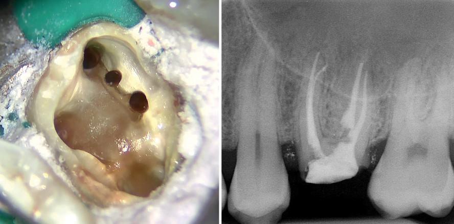 Endodontischer Wiederaufbau bei außergewöhnlicher Anatomie
