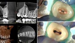 Ein einfacher Fall? Endodontische Diagnostik mithilfe des DVT