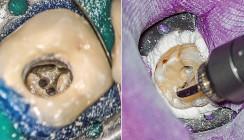 Einsatz des AdvErL EVO-Lasers in der Endodontie