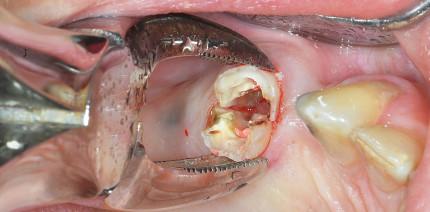 Die minimalinvasive Extraktion und die chirurgische Extrusion