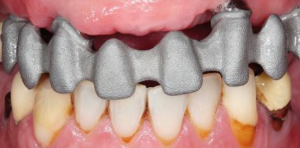 Festsitzender Zahnersatz bei älteren Patienten