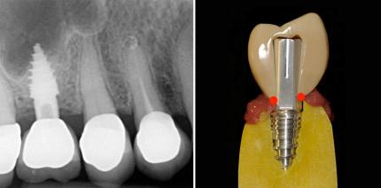Einteilige Implantatsysteme mit zementierten Suprakonstruktionen