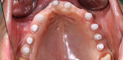 Verzicht auf Sekundärmaterialien zum Knochenersatz in der GBR