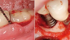 Prävalenz der periimplantären Entzündungen und ihre Behandlung