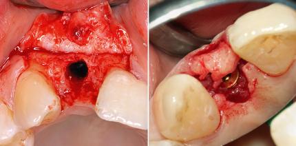 Frontzahnimplantat bei starkem Knochenabbau