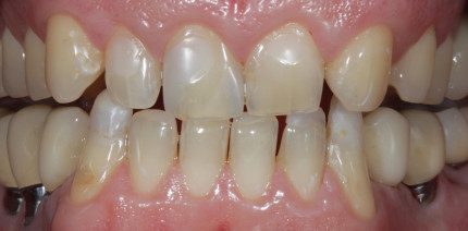 Adhäsive Full-Mouth-Rehabilitation: Modern und substanzschonend