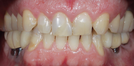 Fallbericht: Adhäsive Full-Mouth-Rehabilitation