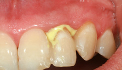 Parodontitisbehandlung: Lokalantibiotikum als Therapieergänzung