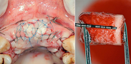 Knochenersatzmaterialien und periimplantärer Knochen