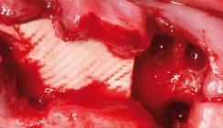 Knochenaufbau und Versorgung defizitärer Extraktionsalveolen