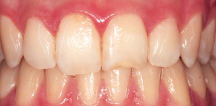 Ästhetisch-Kosmetische Zahnmedizin ist keine Luxusdisziplin