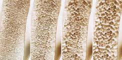 Kalzium-Paradoxon – Das vergessene Vitamin K2