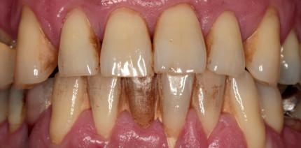 Gingivale Biotypen: Einfluss auf parodontale Erkrankungen