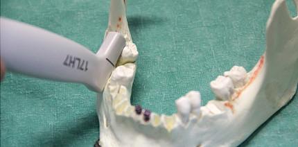 Sonografische Darstellung von verlagerten Zähnen im Unterkiefer