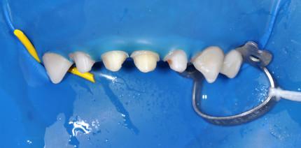 Kronenversorgung pädiatrischer Zähne