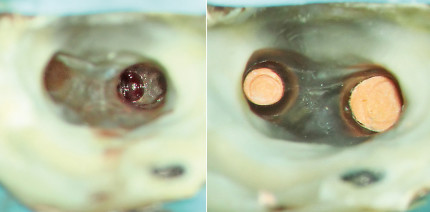 Behandlung eines Zahns mit großer lateraler Aufhellung