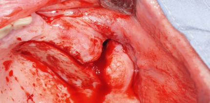 Verschluss einer persistierenden Mund-Antrum-Verbindung