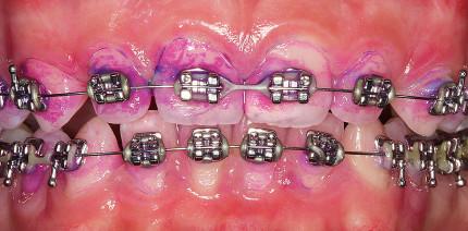 Professionelle Mundhygiene bei Multibandapparaturen