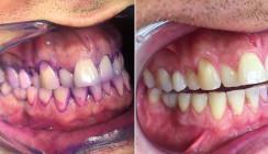 Mundhygiene: Wer rastet, der rostet