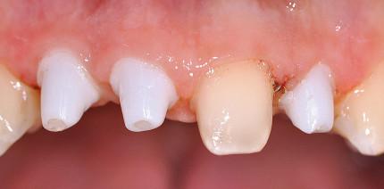 Biologische Zahnmedizin und Keramikimplantate