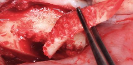 Neuimplantation und vertikaler Knochenaufbau