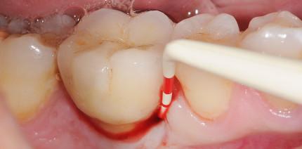 Behandlung von parodontalen und periimplären Infektionen