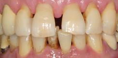 Schienungen im parodontal kompromittierten Gebiss