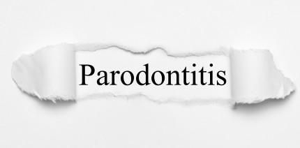 Fazit: Die parodontale Therapie ist überholt und braucht ein Update