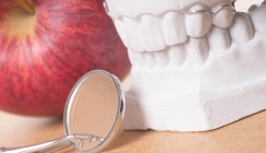Implantate bei Parodontitispatienten – Ist das Risiko kontrollierbar?