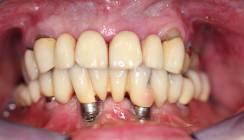 Periimplantitis: Implantate professionell managen